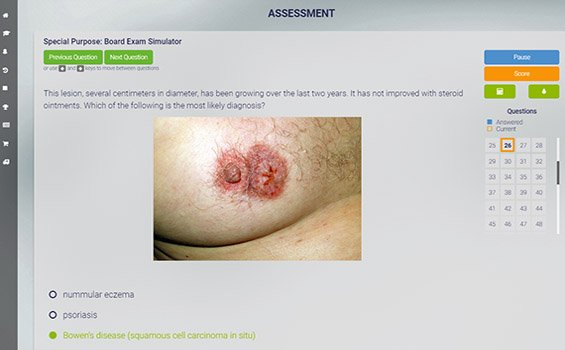 Med-Challenger SPEX exam review course