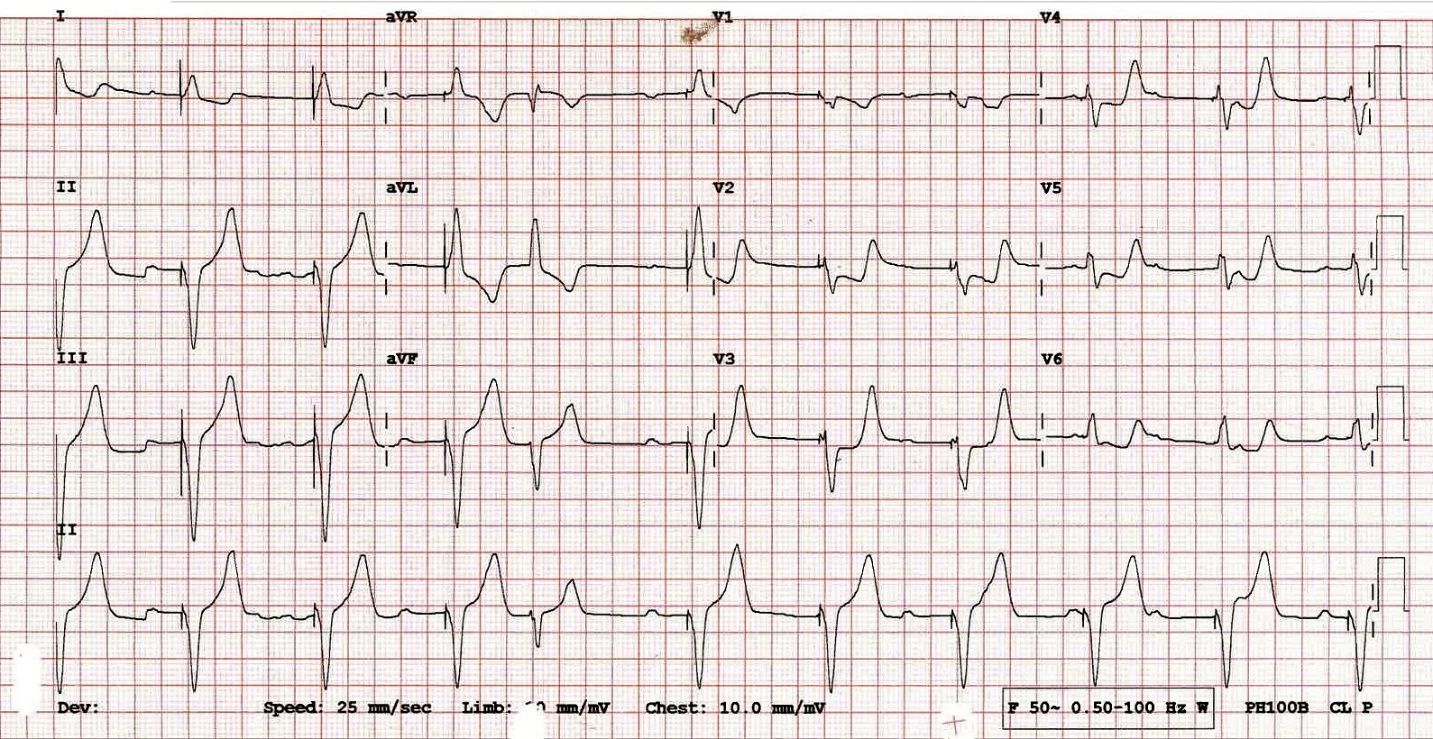 ECG ST elevation myocardial infarction (STEMI) with modified Sgarbossa criteria