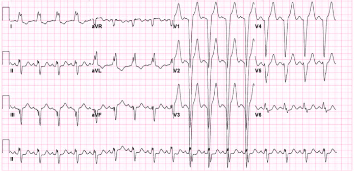 ECG findings with LBBB and the normally associated discordance