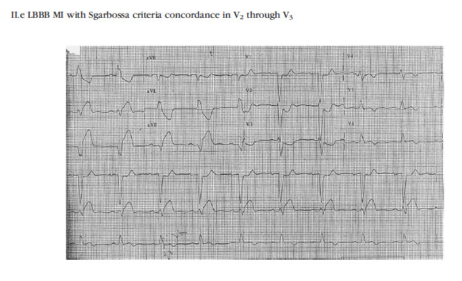 ECG findings with LBBB and myocardial infarction with Sgarbossa criteria concordant ST depression in leads V2 and V3