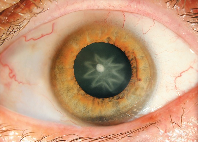 eye disorders board review questions
