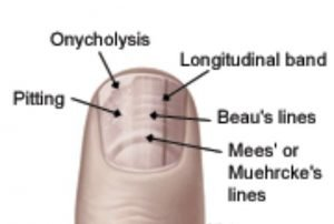 Various types of horizontal or longitudinal fingernail abnormalities