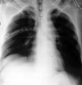 chest xray of cardiovascular injury