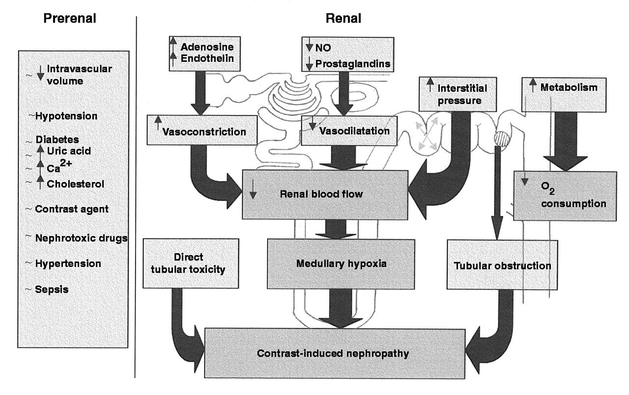 Clinical Pearls Blog: Contrast-Induced Nephropathy | Med-Challenger