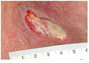 Diabetic-Laceration-in-right-lower-extremities-Geriatric-Syndrome-75-year-old-man