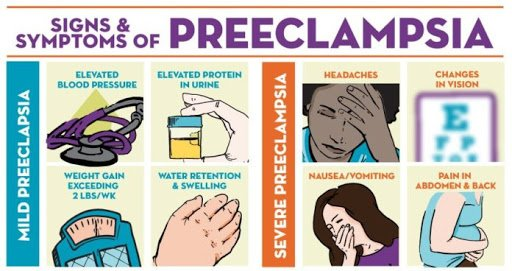 Clinical Pearl of the Month - Preeclampsia, High Risk ... Preeclampsia Swelling Legs