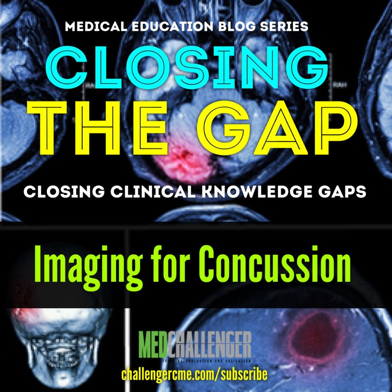 imaging for concussion - using the glasgow coma score to know when to image the brain
