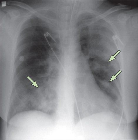 bacterial infections radiograph emergence of MRSA pneumonia